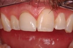 Before dental implant treatment with lower teeth missing