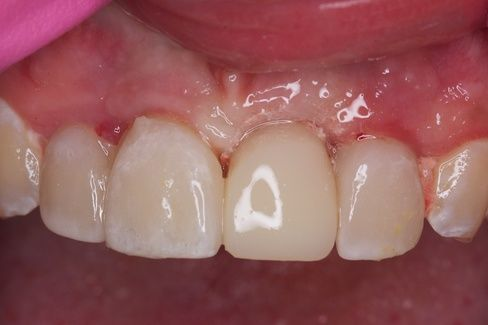 Slide show of same-day dental implant treatment