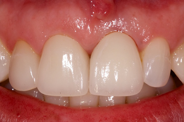 Patient's mouth after smile makeover with a dental implant