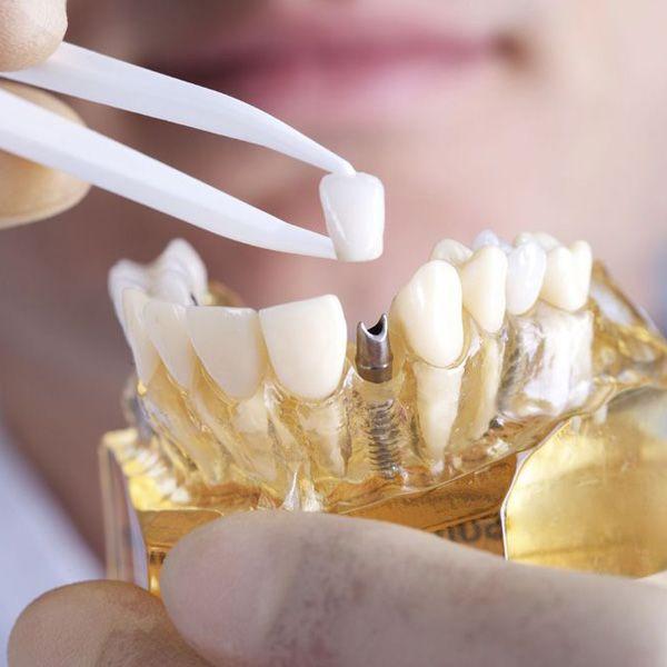 A dental mold demonstrating how dental implants work
