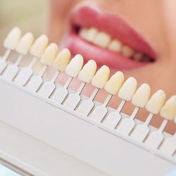 Patient's smile against a shade palette for teeth whitening treatment.