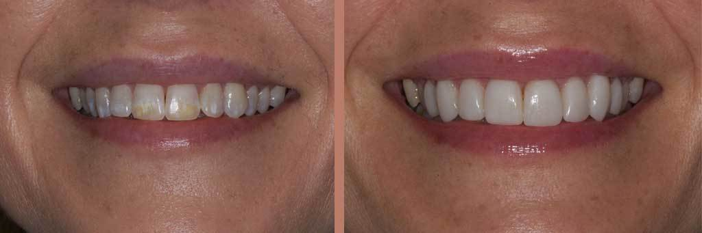 patient smiling with stained teeth