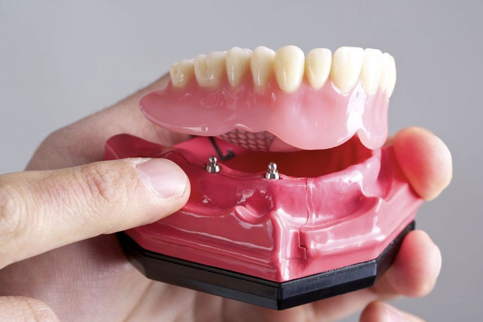 Closeup on a model of an implant-supported denture that demonstrates where the implants attach to the restoration.