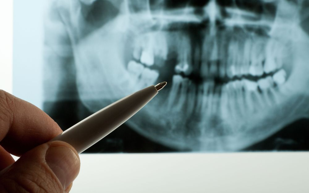 A doctor indicates a tooth that may need extraction on an x-ray.