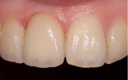 Tooth loss due to trauma.