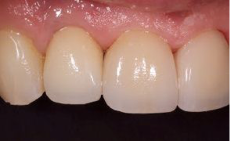 Teeth damaged by bruxism.