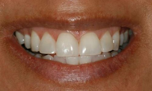 patient after teeth whitening