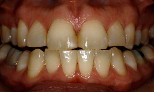 patient before teeth whitening