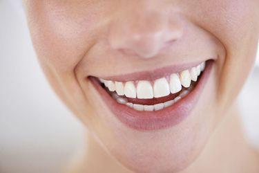 A woman's brilliant smile