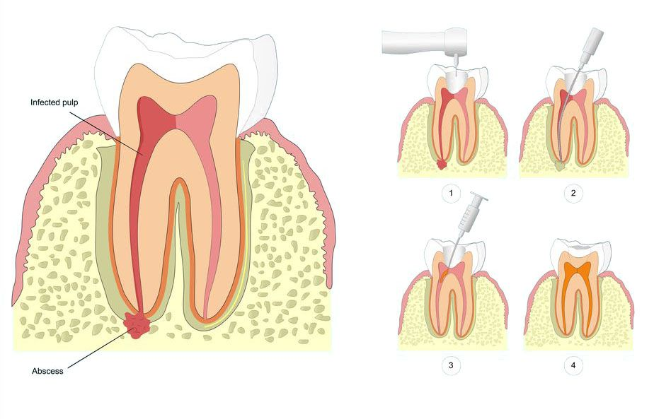 Illustration showing stages of root canal therapy