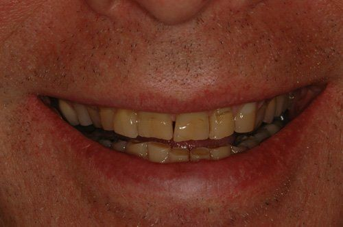 dental patient before procedure