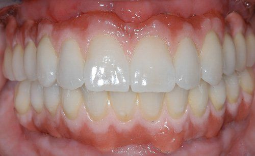 dental implant patient after