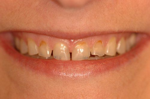 Patient before dental crowns