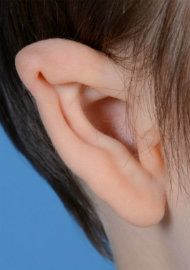 Photo of an ear affected by a mild case of microtia.