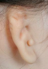 Photo of an ear heavily affected by microtia.