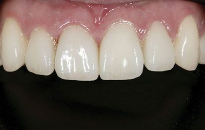 After teeth whitening using biomimetic dentistry techniques