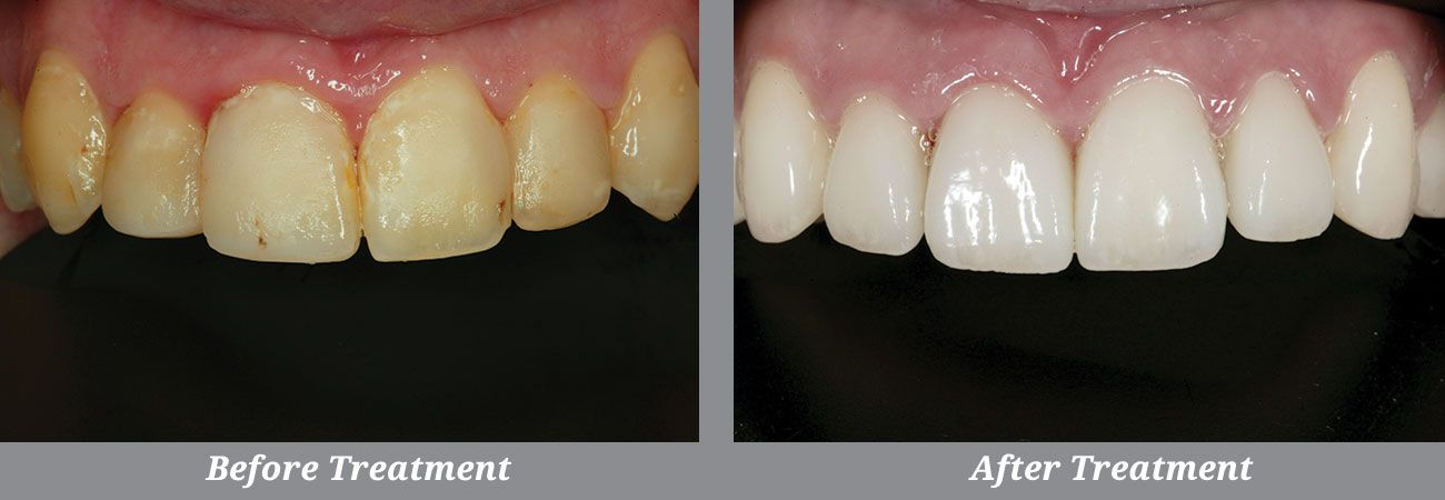 Closeup of Dr. Fusco's before and after smile makeover