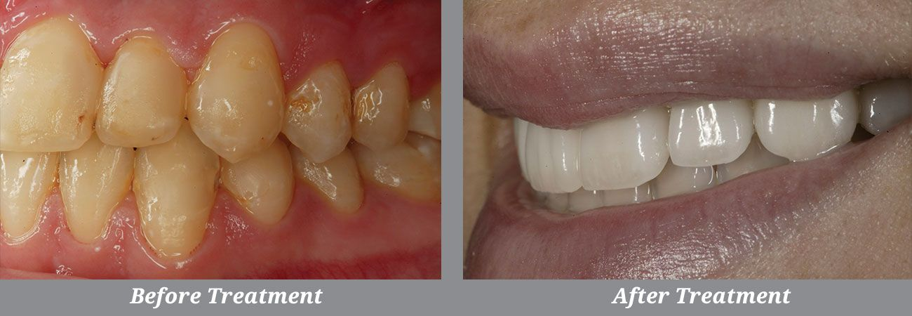 Profile closeup of Dr. Fusco's before and after smile makeover