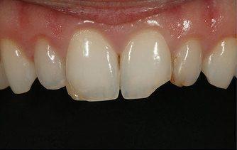 Before dental bonding photo