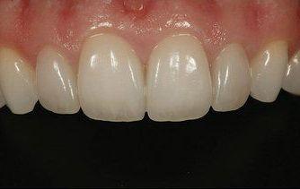 After dental bonding photo