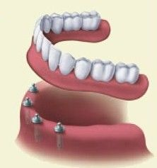 implant retained denture illustration