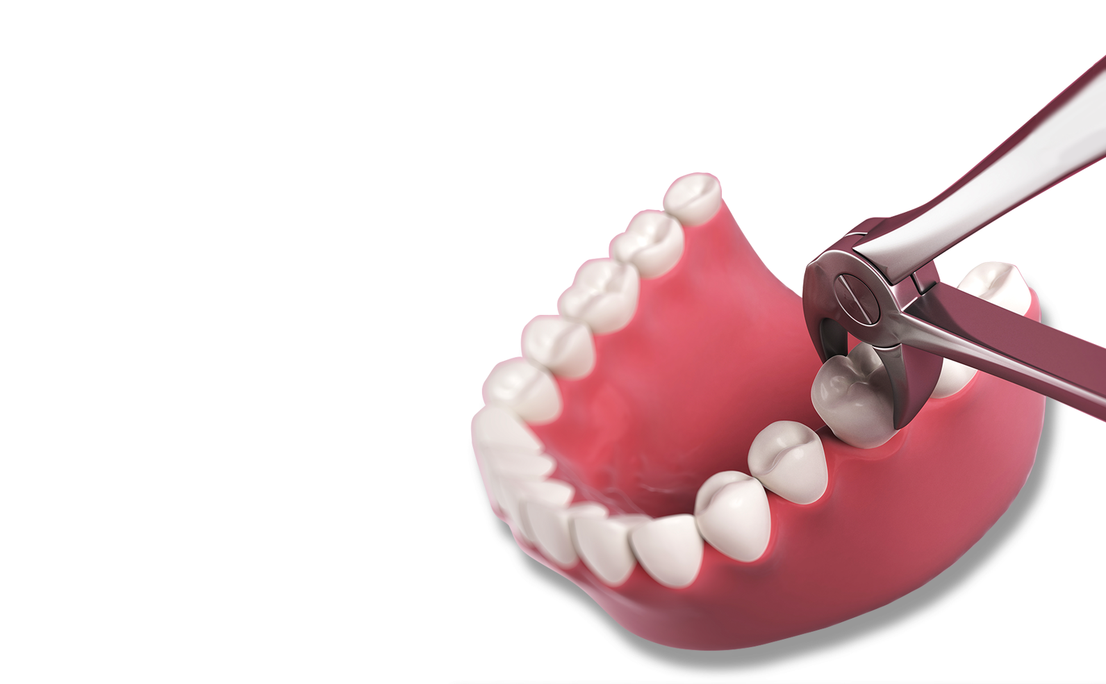 Tooth Extraction Fort Wayne In Harrison Dental Group