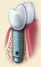 Illustration of dental implants in the jaw