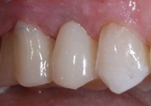 Implant-supported crown surrounded by natural teeth