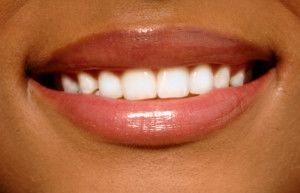 Close up picture of smiling mouth