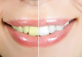 Before and after teeth whitening photo