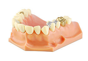 Photo of a dental mold with crowns