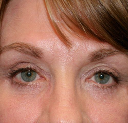 After blepharoplasty picture