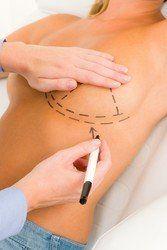 Breast lift consultation.
