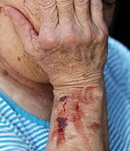 An image of an arm wound resulting from nursing home abuse