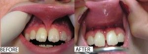 Before and after frenectomy photo