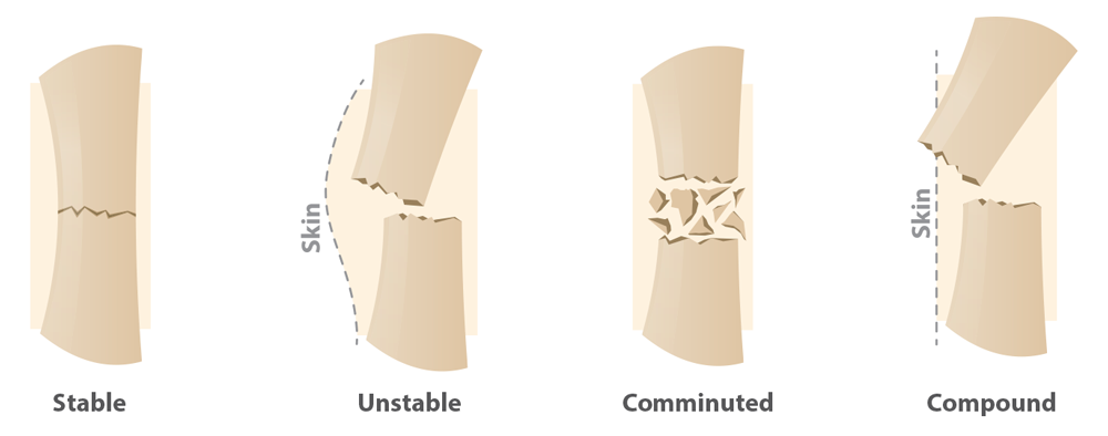 Illustrations showing types of fractures