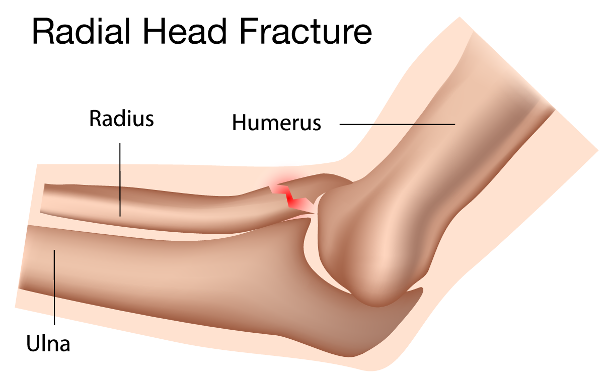 Illustration of a radial head fracture.
