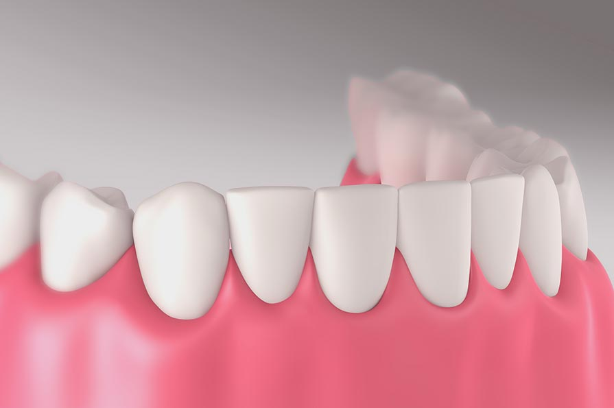 Illustration of healthy gum position