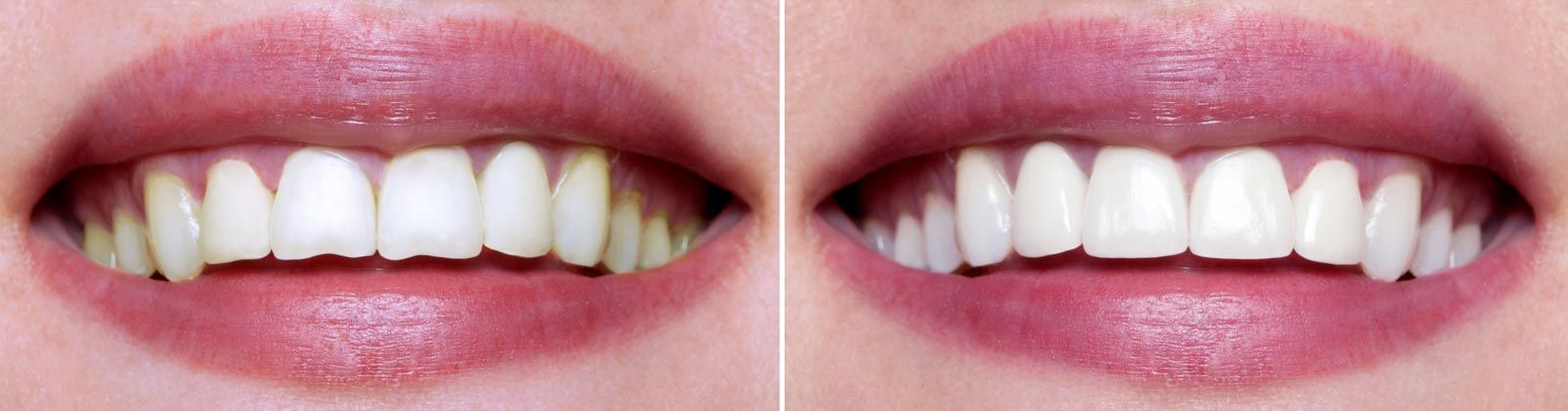 Before and after tooth recontouring