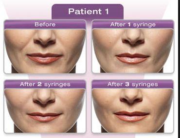 Hyaluronic acids for dermal fillers
