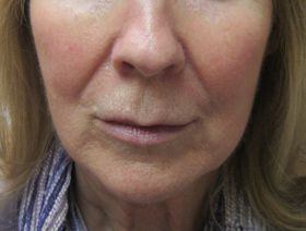 Patient with redness on cheeks reduced