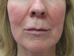Patient with redness on cheeks