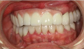 Image showing patient's mouth before and after receiving dental implants.