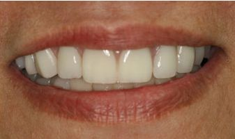Photo of dental implants after