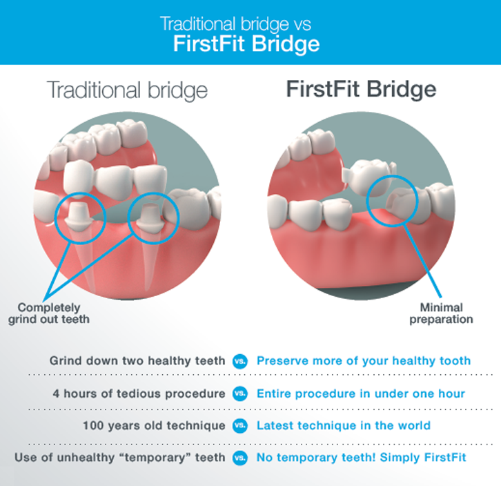 Traditional vs. FirstFit Bridge