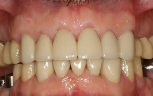 After photo of dental crowns and crown lengthening