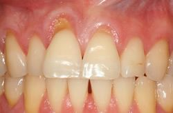 Gingival (Gum) Recession on upper front teeth