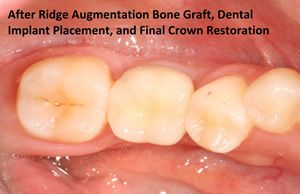 Implant Restored in Ridge Augmentation Bone Graft Case