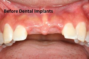 Dental implants before photo
