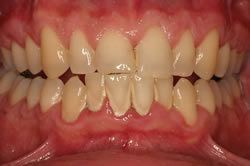 Photo of a patient with gingivitis